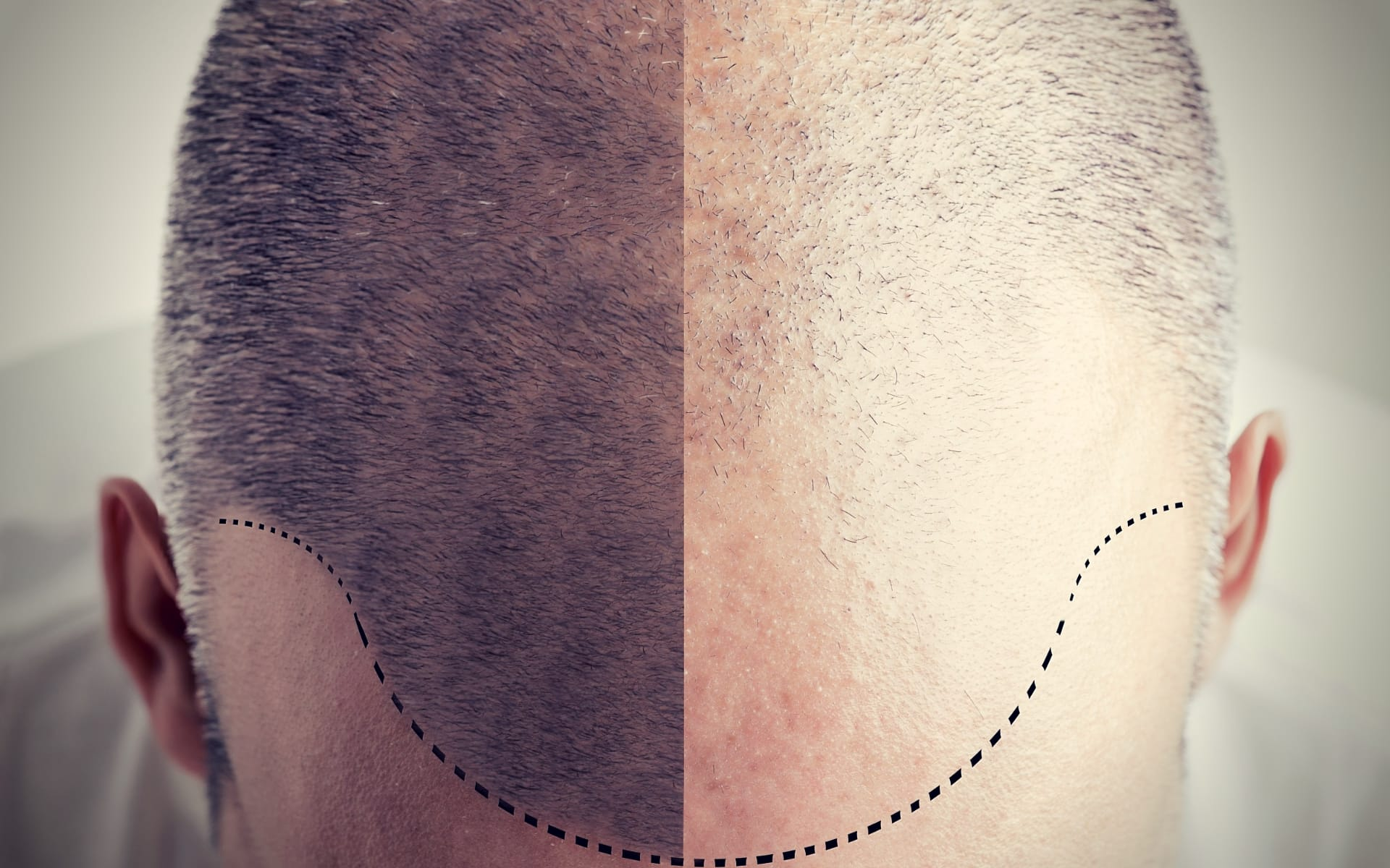 Minoxidil Shampoo Reviews Hair Loss - Before and After