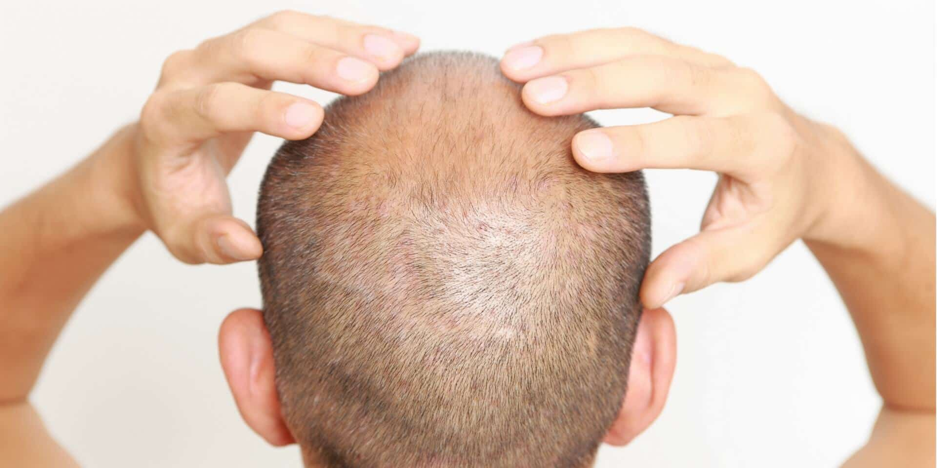 silica for hair growth - best silica supplements for hair growth