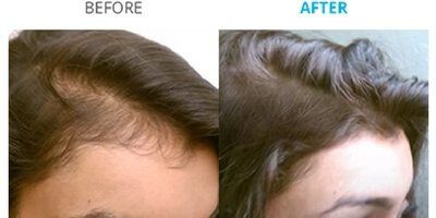 Theradome Review The Science Of Hair Loss And Low Level