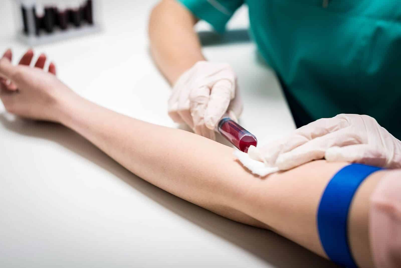 shbg test blood injecting-testing