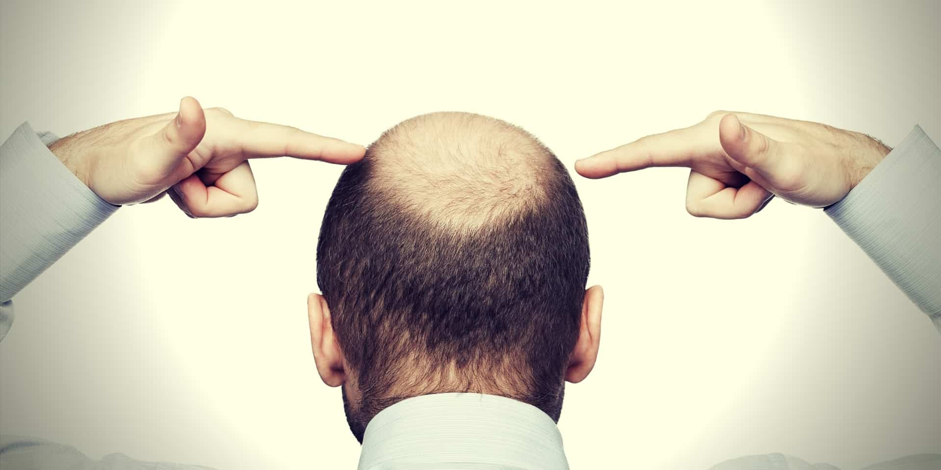 Azelaic Acid Hair Loss bald man head